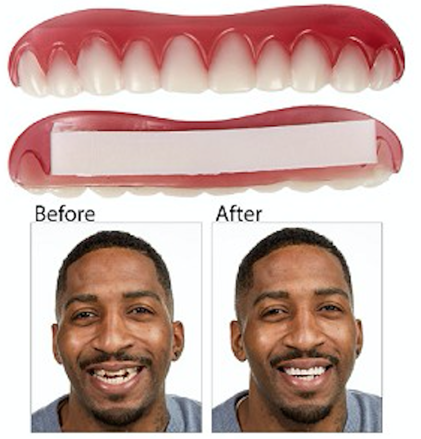 Perfect smile veneers in review do they really work how to fit smile veneers solutioingenieria Images