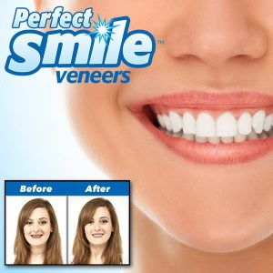 perfect-smile-veneers-before-after