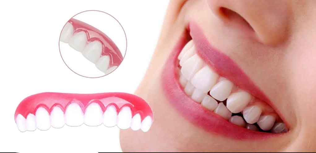 Perfect Smile Veneers Review - Do They Really Work?